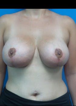 Breast Lift Gallery - Patient 46620236 - Image 2