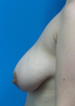Breast Lift Gallery - Patient 46620236 - Image 3