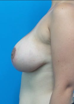 Breast Lift Gallery - Patient 46620236 - Image 4