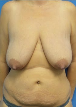 Breast Lift Gallery - Patient 46620263 - Image 1