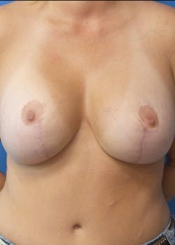 Breast Lift Gallery - Patient 46620263 - Image 2