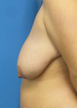 Breast Lift Gallery - Patient 46620263 - Image 3