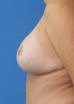 Breast Lift Gallery - Patient 46620263 - Image 4