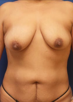 Breast Lift Gallery - Patient 46620335 - Image 1