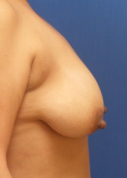 Breast Lift Gallery - Patient 46620335 - Image 3