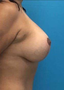 Breast Lift Gallery - Patient 46620335 - Image 4