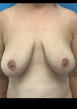 Breast Lift Gallery - Patient 46620392 - Image 1