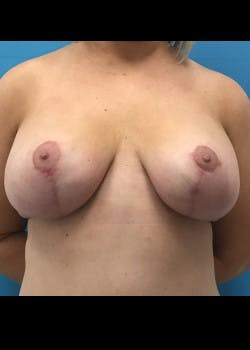 Breast Lift Gallery - Patient 46620392 - Image 2