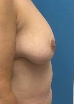 Breast Lift Gallery - Patient 46620392 - Image 3