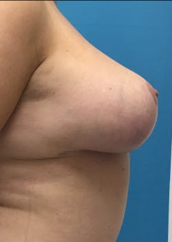 Breast Lift Gallery - Patient 46620392 - Image 4