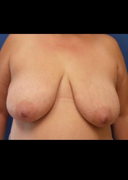 Breast Lift Gallery - Patient 46620397 - Image 1
