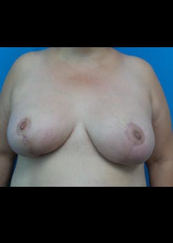 Breast Lift Gallery - Patient 46620397 - Image 2