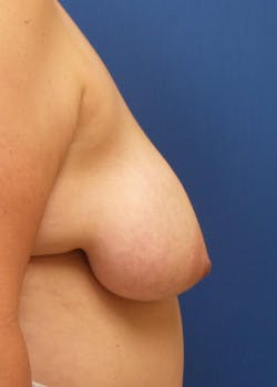 Breast Lift Gallery - Patient 46620397 - Image 3