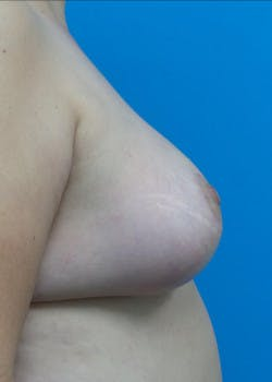 Breast Lift Gallery - Patient 46620397 - Image 4