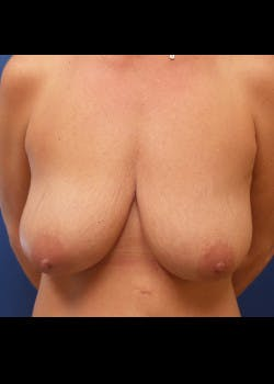 Breast Lift Gallery - Patient 46620490 - Image 1