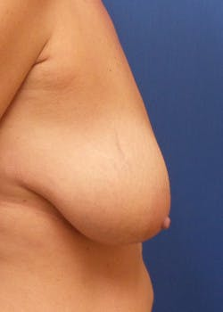 Breast Lift Gallery - Patient 46620490 - Image 3