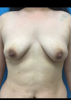 Breast Lift Gallery - Patient 46620535 - Image 1