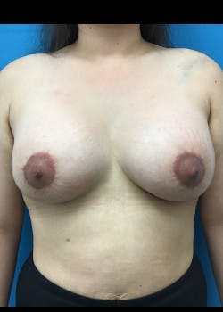 Breast Lift Gallery - Patient 46620535 - Image 2