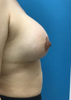 Breast Lift Gallery - Patient 46620535 - Image 4