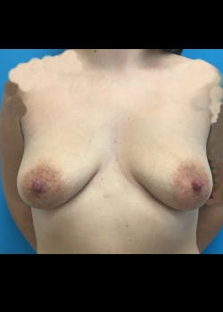 Breast Lift Gallery - Patient 46620600 - Image 1
