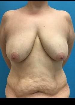 Breast Lift Gallery - Patient 46621324 - Image 1