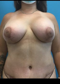 Breast Lift Gallery - Patient 46621325 - Image 2