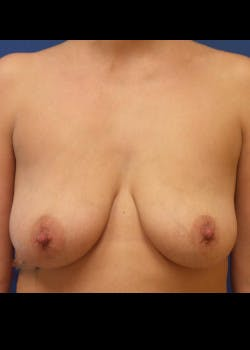 Breast Lift Gallery - Patient 46621329 - Image 1