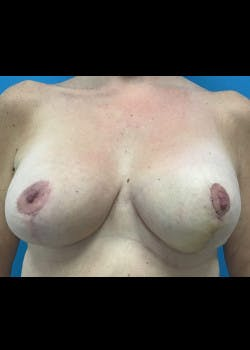 Breast Lift Gallery - Patient 46621332 - Image 1