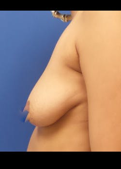 Breast Augmentation Gallery - Patient 46628831 - Image 3