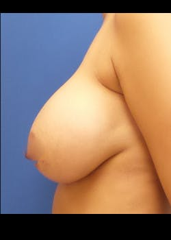 Breast Augmentation Gallery - Patient 46628831 - Image 4