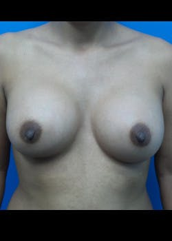 Breast Augmentation Gallery - Patient 46628858 - Image 2