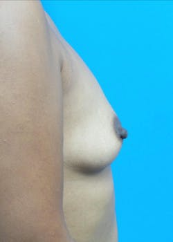 Breast Augmentation Gallery - Patient 46628858 - Image 3