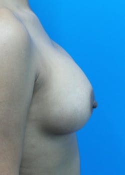 Breast Augmentation Gallery - Patient 46628858 - Image 4