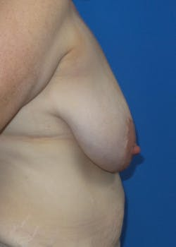 Breast Augmentation Gallery - Patient 46628874 - Image 3