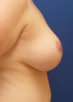 Breast Augmentation Gallery - Patient 46628874 - Image 4
