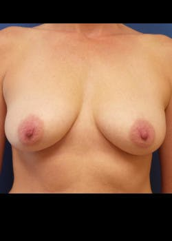 Breast Augmentation Gallery - Patient 46628890 - Image 1