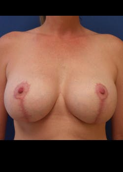 Breast Augmentation Gallery - Patient 46628890 - Image 2