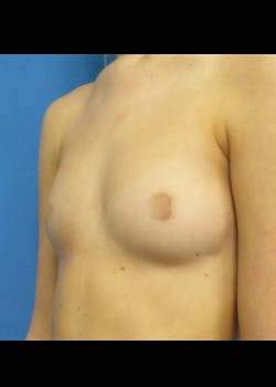 Breast Augmentation Gallery - Patient 46628906 - Image 1