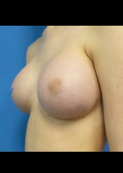 Breast Augmentation Gallery - Patient 46628906 - Image 2