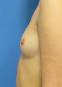 Breast Augmentation Gallery - Patient 46628906 - Image 3