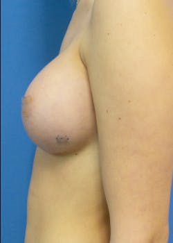 Breast Augmentation Gallery - Patient 46628906 - Image 4