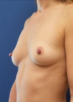 Breast Augmentation Gallery - Patient 46628922 - Image 1