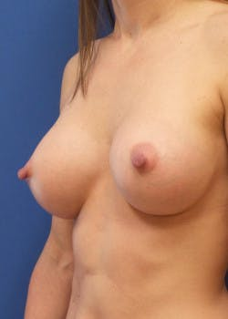 Breast Augmentation Gallery - Patient 46628922 - Image 2