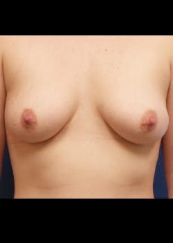 Breast Augmentation Gallery - Patient 46628941 - Image 1