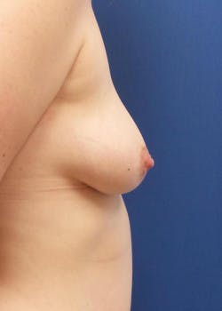 Breast Augmentation Gallery - Patient 46628941 - Image 3
