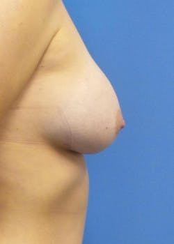 Breast Augmentation Gallery - Patient 46628941 - Image 4