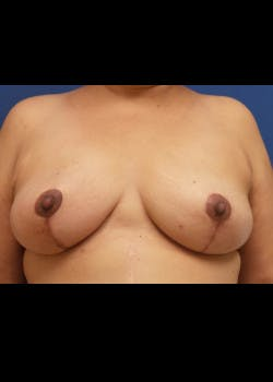 Breast Augmentation Gallery - Patient 46628958 - Image 1