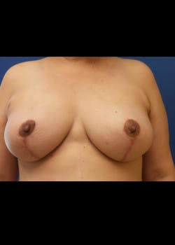 Breast Augmentation Gallery - Patient 46628958 - Image 2