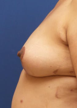 Breast Augmentation Gallery - Patient 46628958 - Image 3