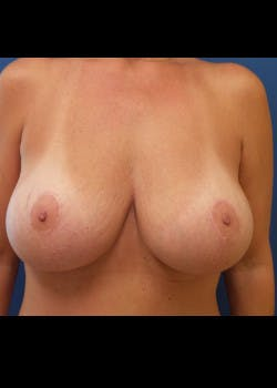 Breast Augmentation Gallery - Patient 46628981 - Image 2